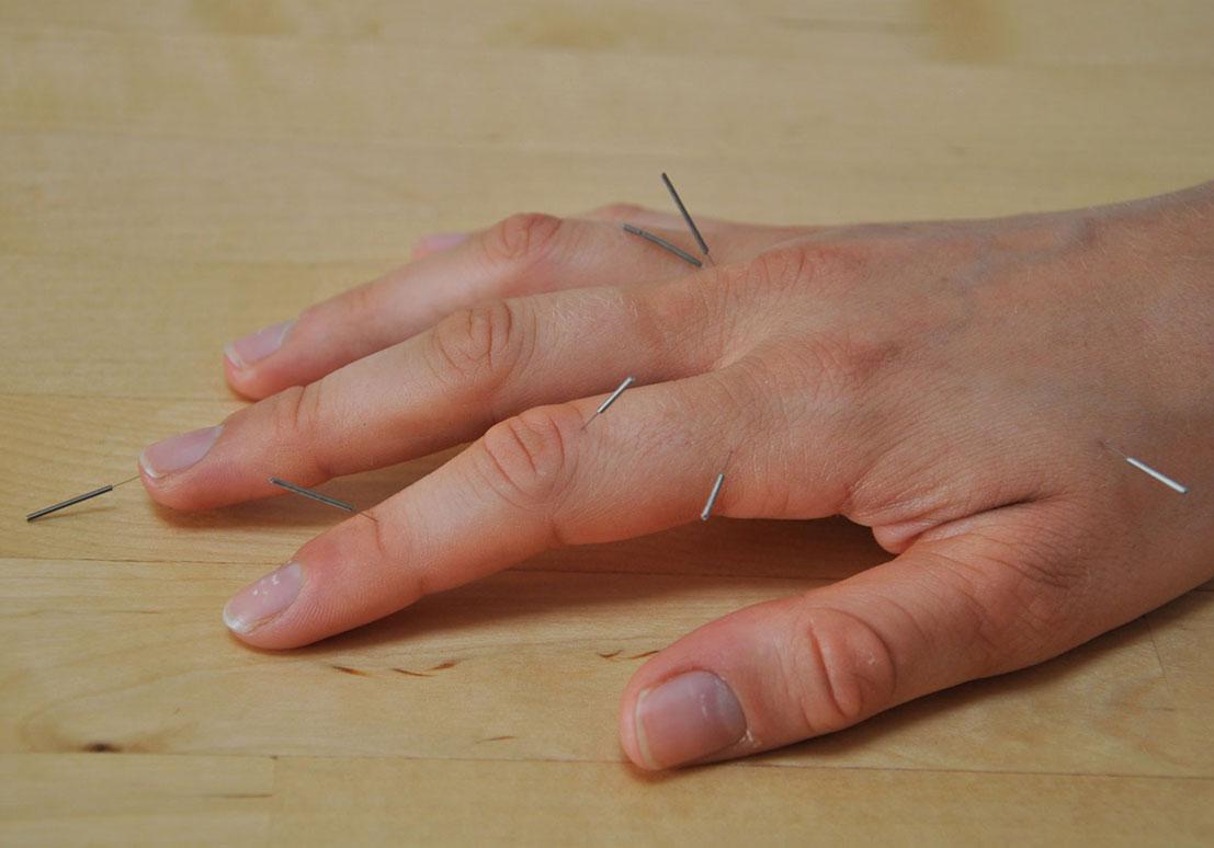 Hand-Akupunktur Bad Aibling